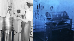 history of dialysis